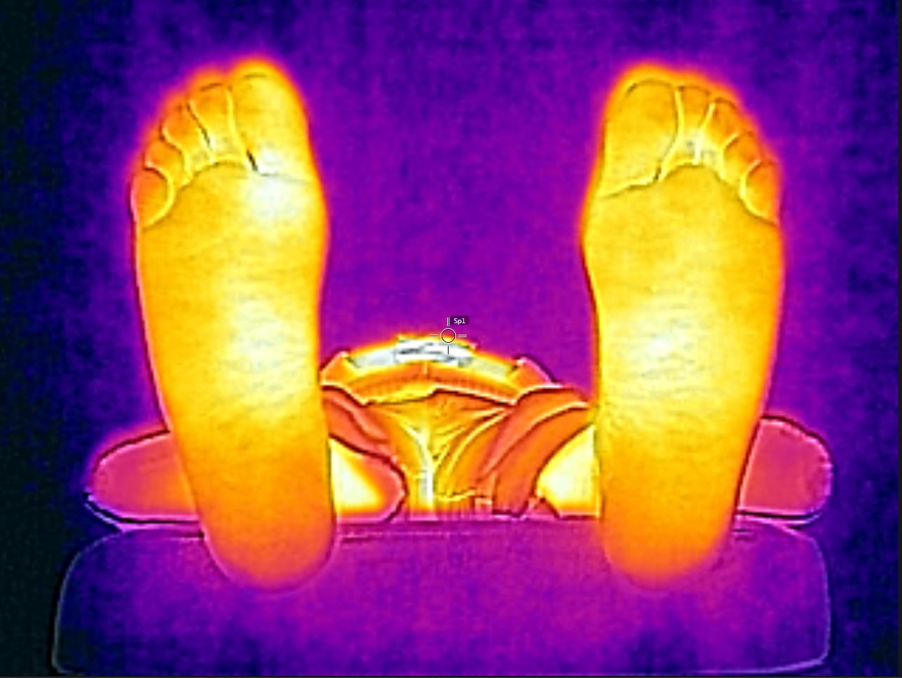 Feet thermal picture example 1.